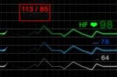 آیا نبض همان ضربان قلب است؟