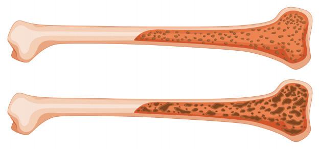 درمان پوکی استخوان در افراد مسن