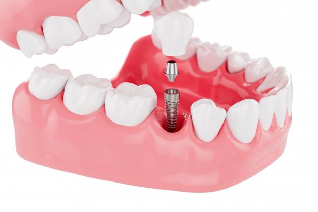کاشت دندان بریج