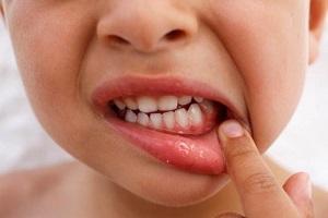 تعبیر خواب افتادن دندان
