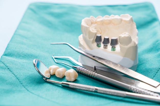 ایمپلنت چیست ، انواع کاشت دندان ثابت