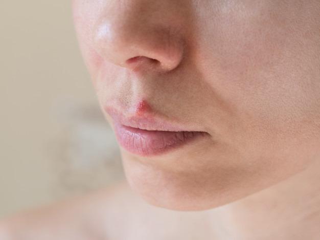 وازلین برای درمان تبخال تناسلی ، درمان تبخال با آبلیمو