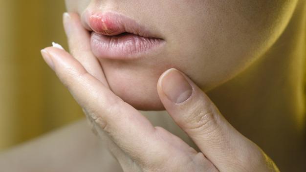 درمان تبخال با بتادین ، درمان تبخال با جوش شیرین