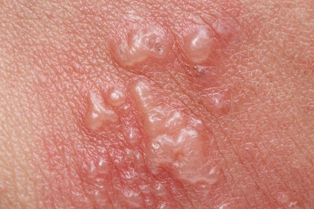 اسپری درمان تبخال ، درمان تبخال با عسل
