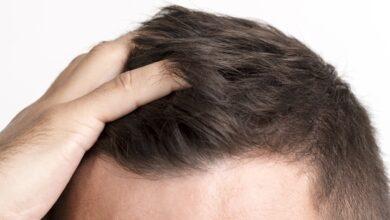 بعد از کاشت مو ، عوارض بعد از کاشت مو