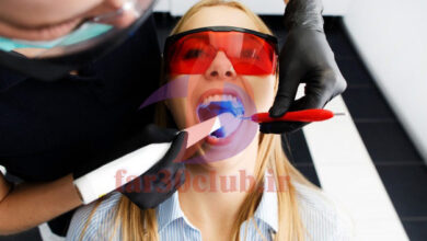 بلیچینگ دندان قبل و بعد ، بلیچینگ دندان در مشهد