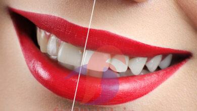 ژل سفید کننده دندان چیست ، ژل سفید کننده دندان در داروخانه