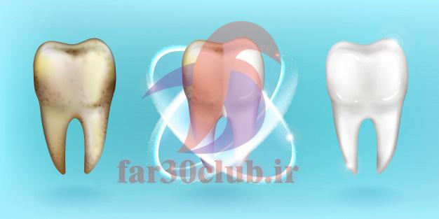 ایا ژل سفید کننده دندان ضرر دارد ، انواع ژل سفید کننده دندان